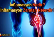 inflamasyon;inflamasyon-nedir;inflamasyon-ne-demek;inflamasyon-zararları;akut-inflamasyon;kronik-inflamasyon;inflamasyon-nasıl-meydana-gelir;inflamasyon-zararları-neler